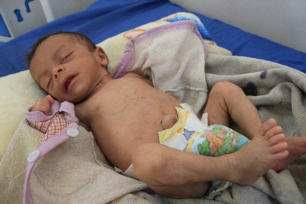 yemenichildren (6)
