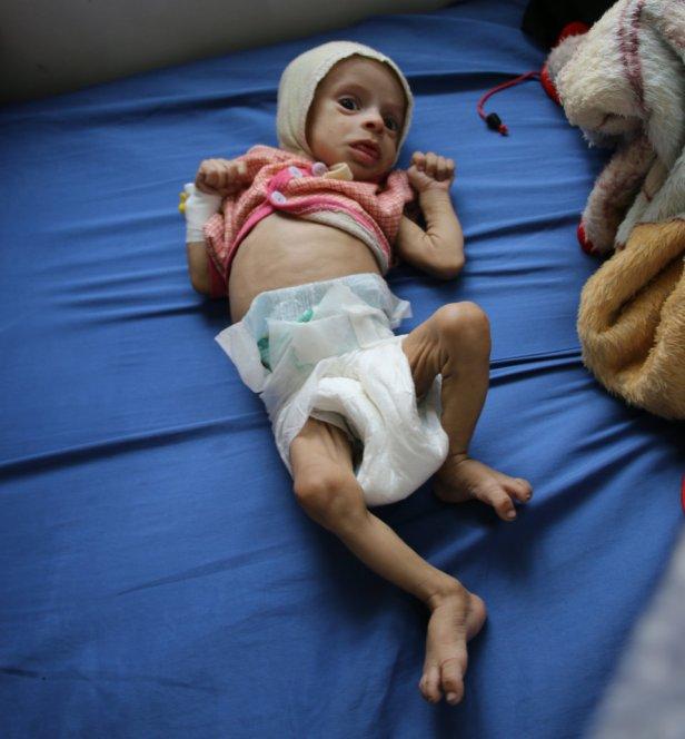 yemenichildren (8)